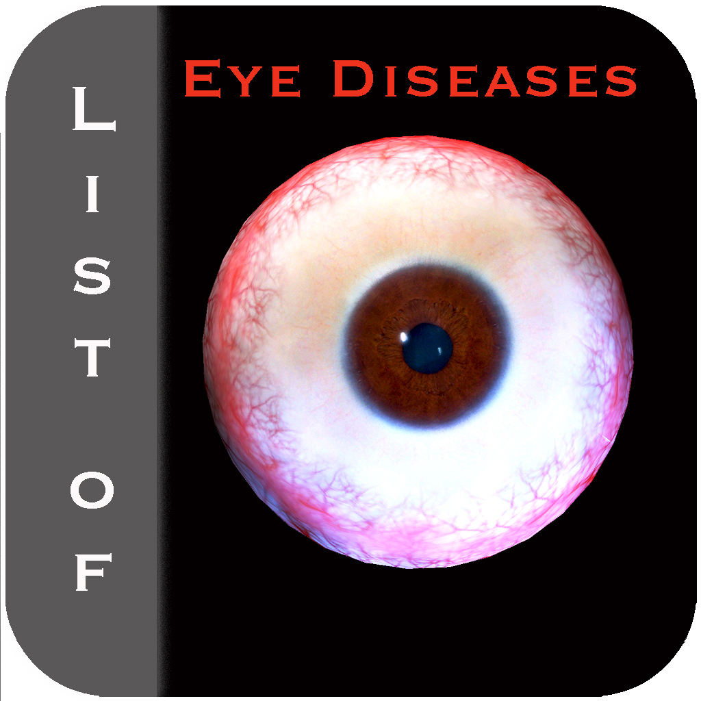 eye diseases Eye diseases - get latest news on eye diseases read breaking news on eye diseases updated and published at zee news.
